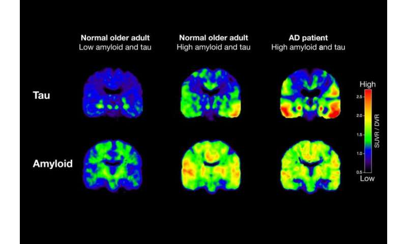 PET scans reveal key details of Alzheimer's protein growth in aging brains