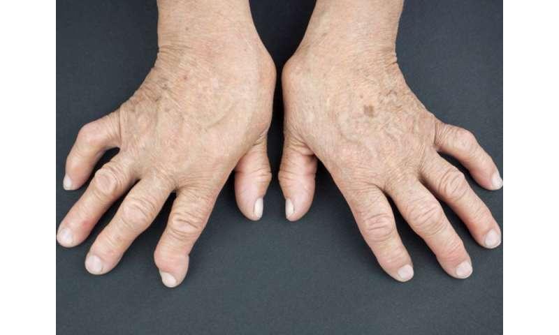 Prednisone use linked to increased risk of mortality in RA