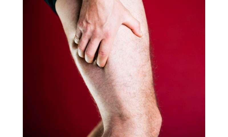 Reduction in proximal, distal leg muscle strength in T2DM
