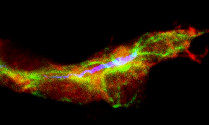 Research into fly development provides insights into blood vessel formation