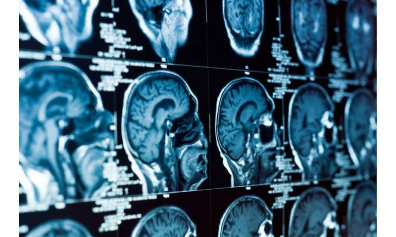 Specific brain areas found to be linked to depression
