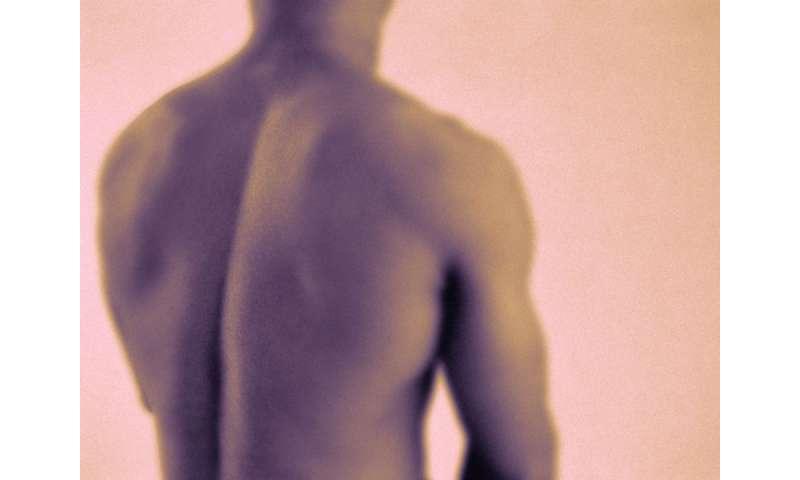 Spondyloarthritis features can identify axial spondyloarthritis