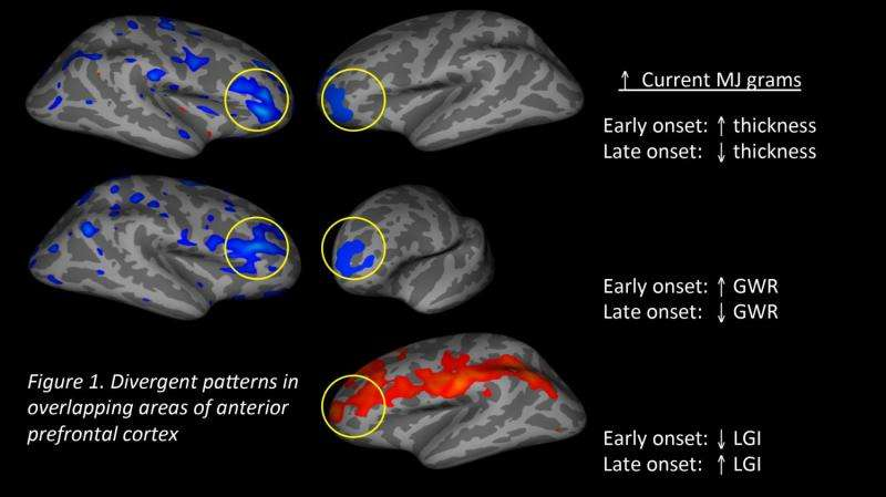 Starting age of marijuana use may have long-term effects on brain development