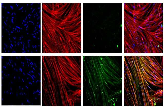 Stem cell gene therapy could be key to treating Duchenne muscular dystrophy