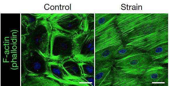 Stem cells respond to mechanical forces by changing their structure