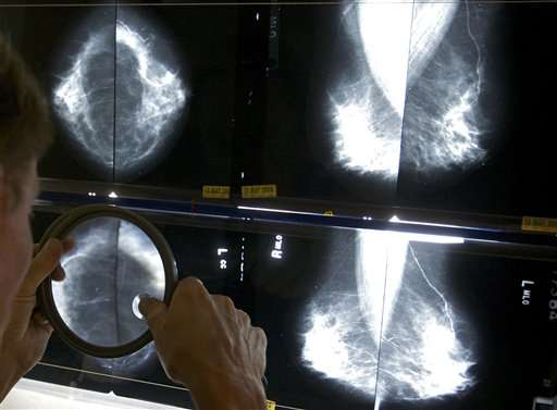 Task force: Mammograms an option at 40, do more good at 50