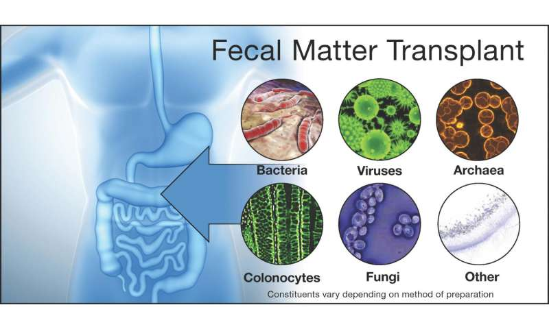 These days fecal transplantation is no joke