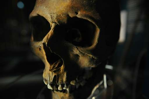 The skull of a crew member recovered from the wreck of the Tudor warship the Mary Rose on display during a press preview of the