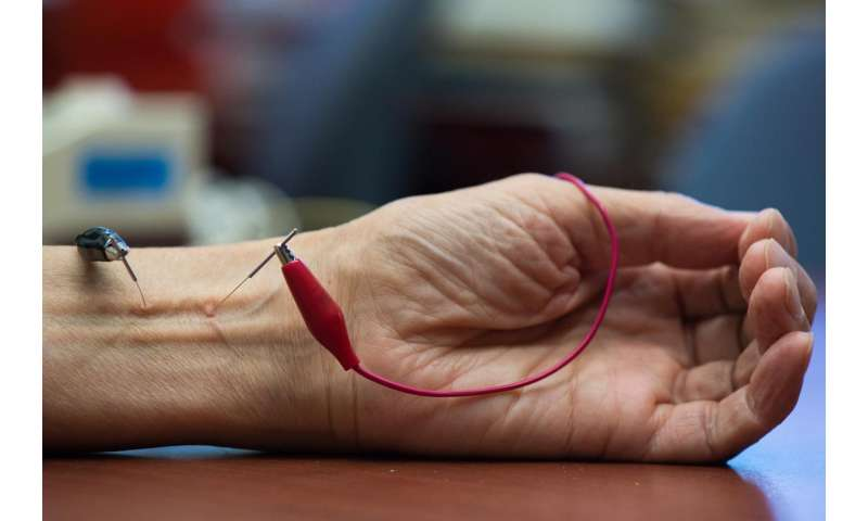 UCI study finds acupuncture lowers hypertension by activating natural opioids