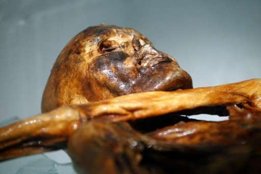 "Unlike other ancient mummies, Oetzi is ""damp"", meaning there is still humidity in his cells and his body is untouched"