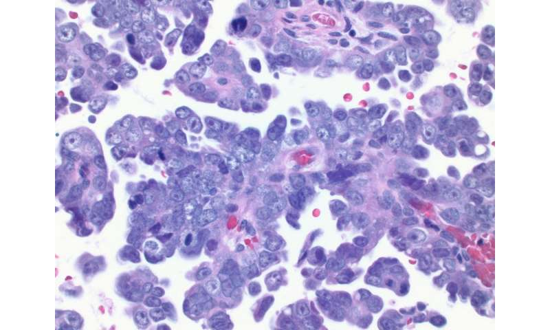 Women with BRCA1 gene mutation at higher risk of deadly uterine cancer