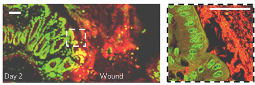 Wound-healing intestinal bacteria: Like shrubs after a forest fire