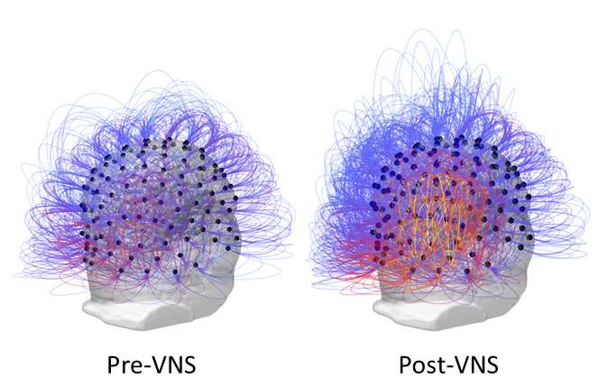 After 15 years in a vegetative state, nerve stimulation restores consciousness