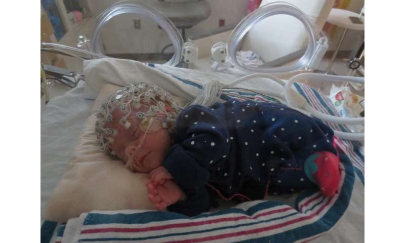 A prescription for touch: Early experiences shape preterm babies' brains
