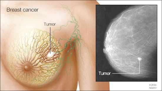 of breast cancer tumors pictures