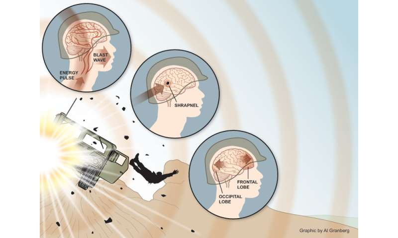 Diagnostic approach for veterans suffering hearing impairment and related brain injury from mild blast trauma