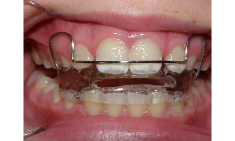 Difficult to get orthodontics to work in younger children