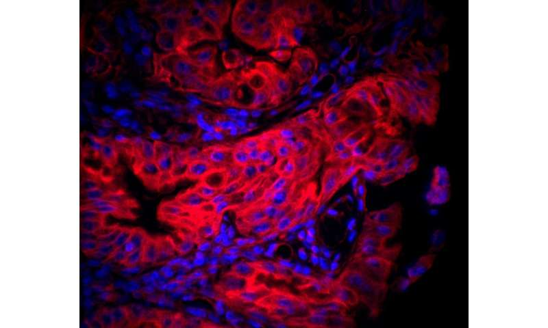 Gastric cancer: A new strategy used by Helicobacter pylori to target mitochondria