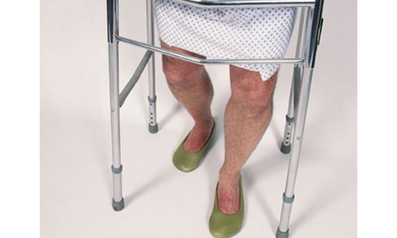 Increased risk of MI, stroke for patients with hip fracture