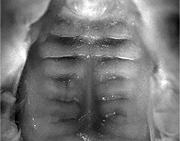 In-utero treatment reverses cleft palate in mice