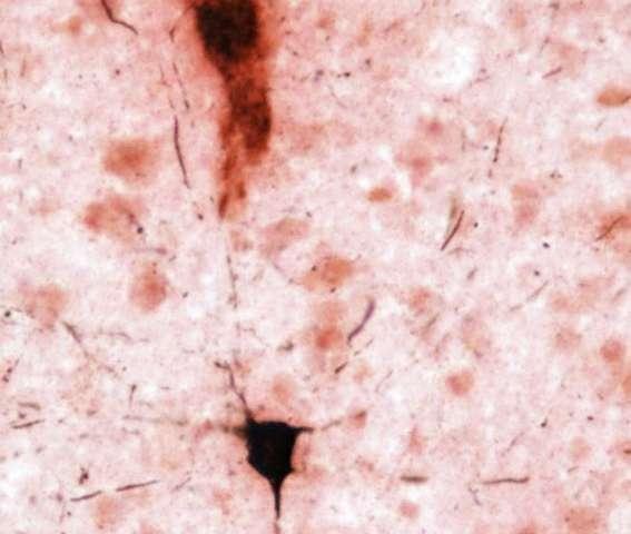 Kent State researchers help find pathologic hallmarks of Alzheimer's in aged chimpanzee brains