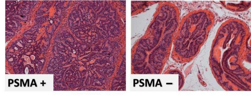 Mark of malignancy identified in prostate cancer