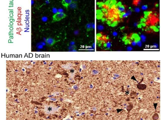 New Alzheimer's animal model more closely mimics human disease