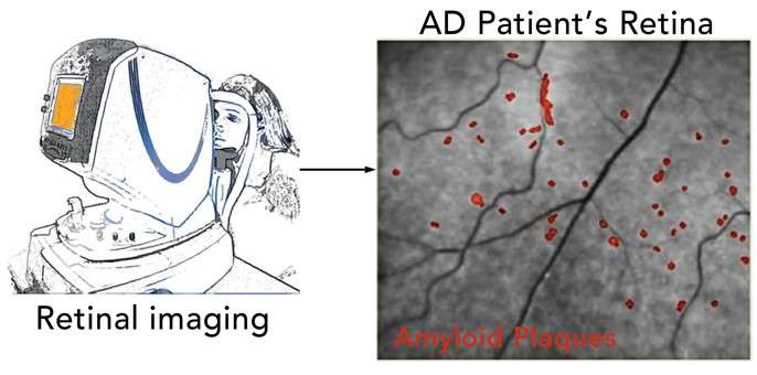 Noninvasive eye scan could detect key signs of Alzheimer's years before patients show symptoms