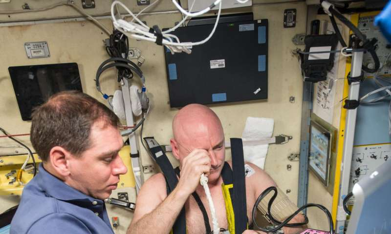 Peek into your genes: NASA one-year mission investigators identify links to vision problems