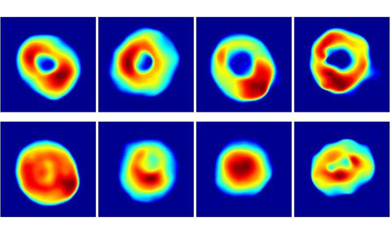 Portable holographic microscope makes field diagnosis possible
