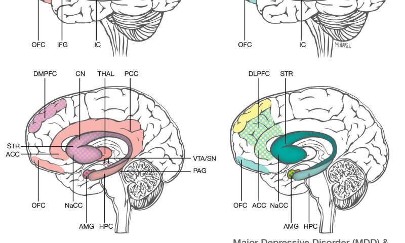 postpartum depression and anxiety distinct from other mood disorders, brain  studies suggest