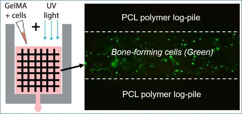 Repairing bone with 3-D printing