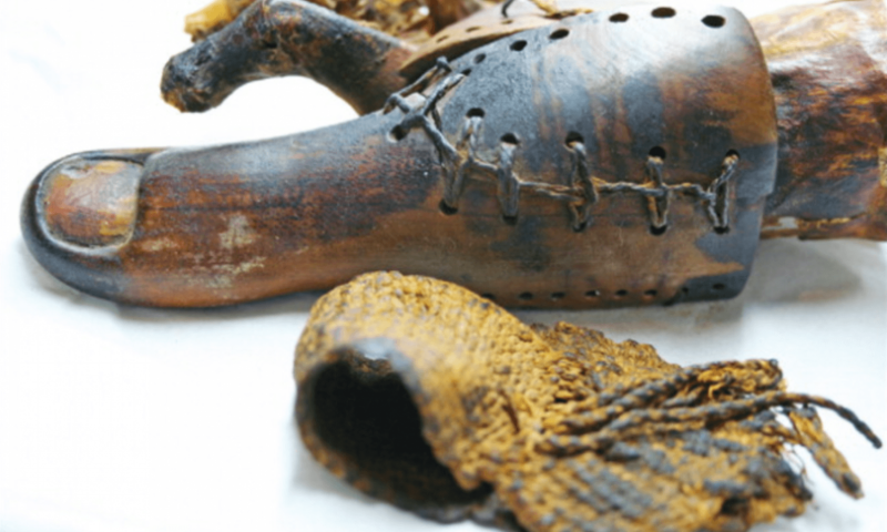 Severed limbs and wooden feet—how the ancients invented prosthetics