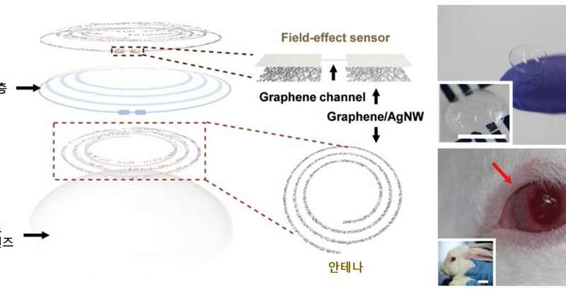 'Smart contact lens sensor' for diabetic and glaucoma diagnosis