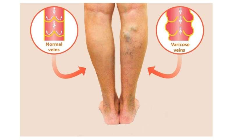 Treatment of varicose veins