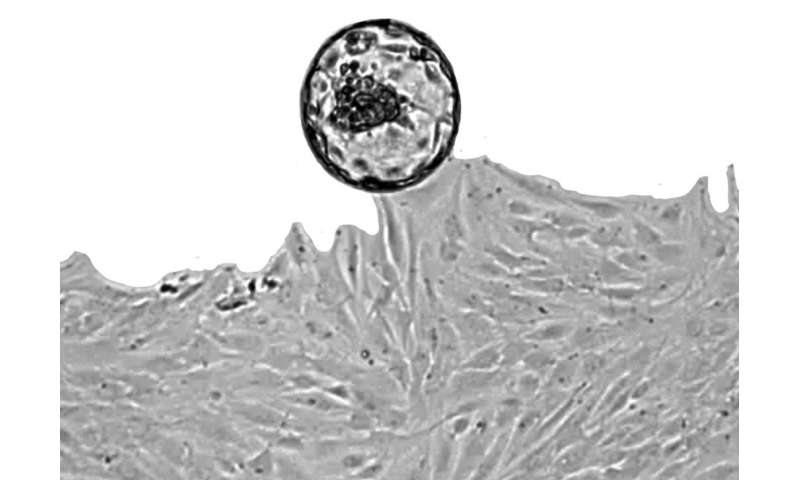 Womb natural killer cell discovery could lead to screening for miscarriage risk