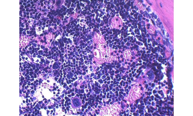 Study explores impact of obesity on bone marrow cells