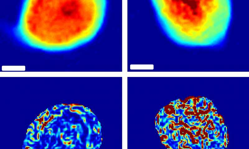 A better way to measure the stiffness of cancer cells