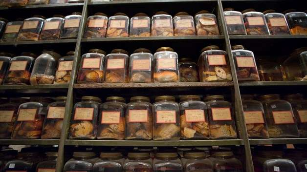 Century-old brain collection yields new research