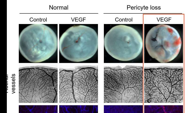 Loss of pericytes deteriorates retinal environment