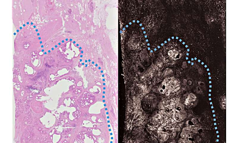 New imaging technique aims to ensure surgeons completely remove cancer