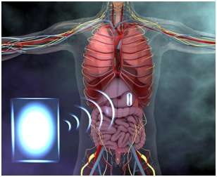 Wireless power can drive tiny electronic devices in the GI tract