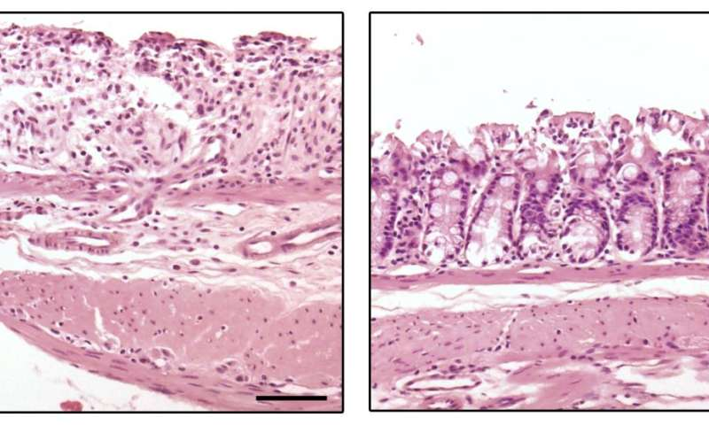 Researchers uncover key role for microRNA in inflammatory bowel disease