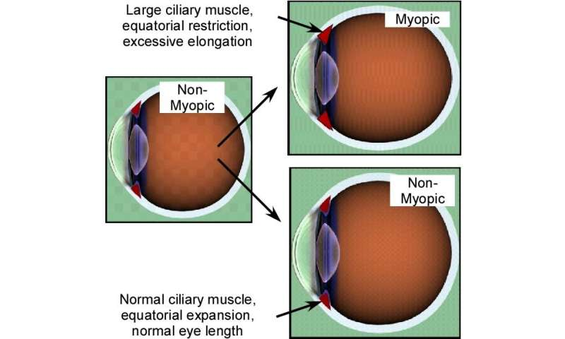 A close look at efforts to turn back the growing problem of myopia