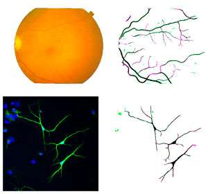 Computational tool recognizes filamentary sections of neurons and blood vessels