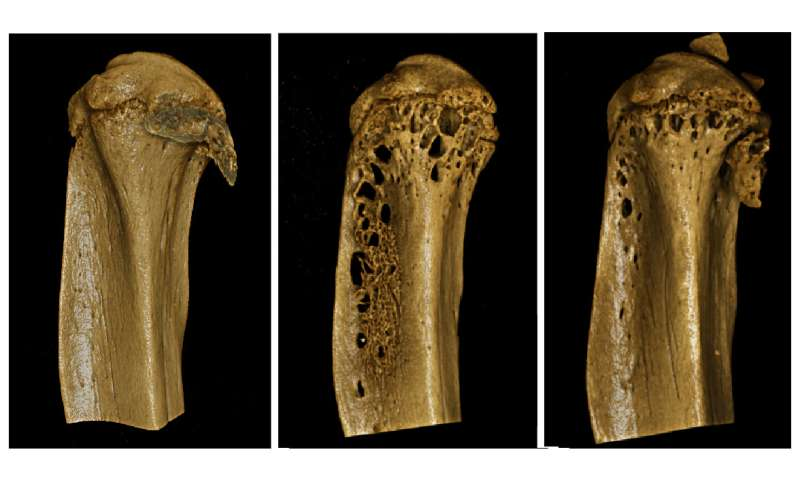 Promising new therapeutic approach for debilitating bone disease