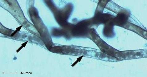Tracking a parasite that's ravaging fish