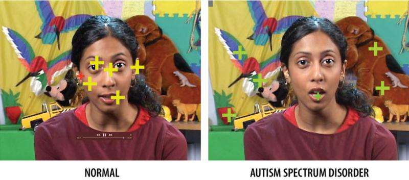 Unraveling autism