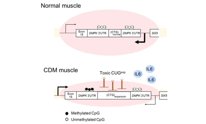 Researchers reveal abnormal myokine signaling in congenital myotonic dystrophy