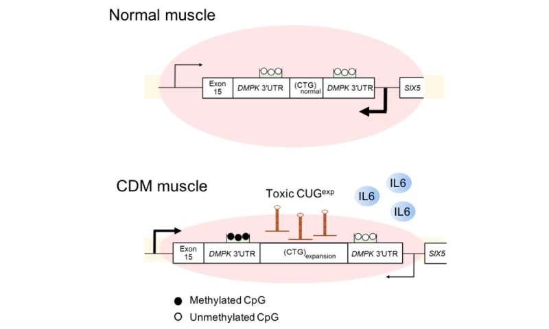 Researchers reveal abnormal myokine signaling in congenital myotonic dystrophy